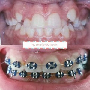 Before After Braces