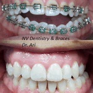 Before After Orthodontics