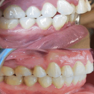 Before After Side Extraction