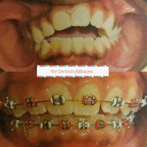 Before After Teeth Straightening