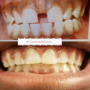 Before After Tooth Gap