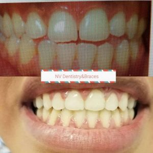 Before After Tooth Repair