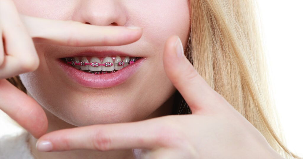 Braces For Jaw Alignment LV