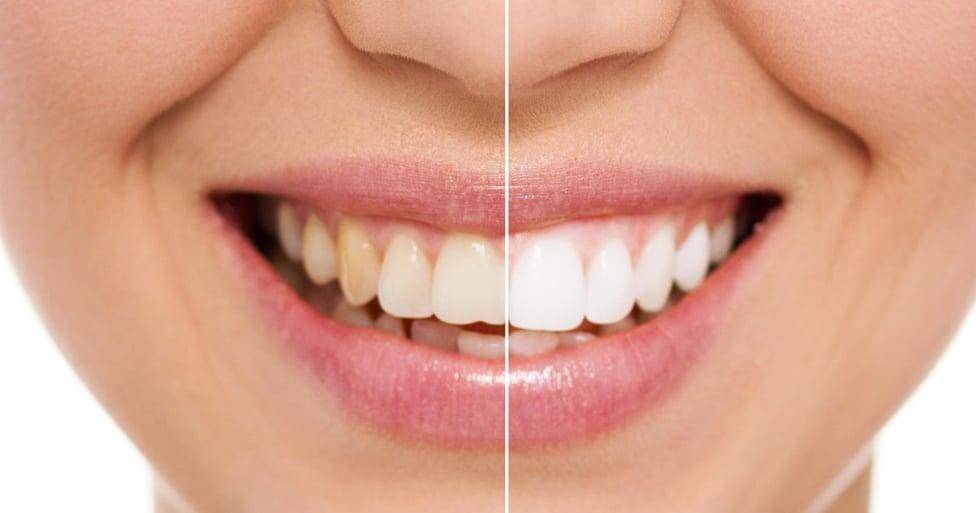 Cosmetic Dentist White Teeth