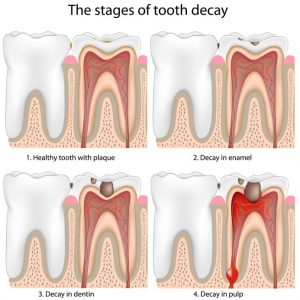 tooth decay extraction