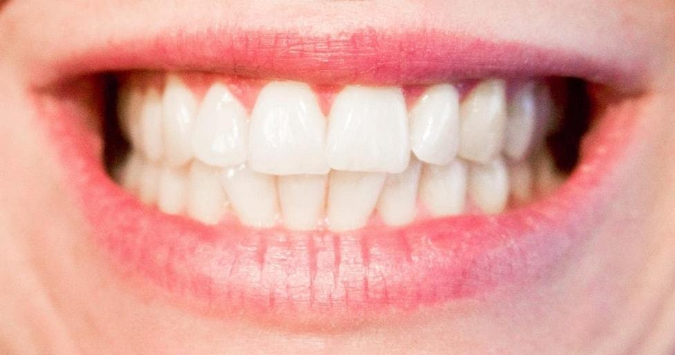 Gummy Smile Dentist