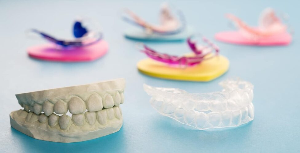 Las Vegas Dental Retainers