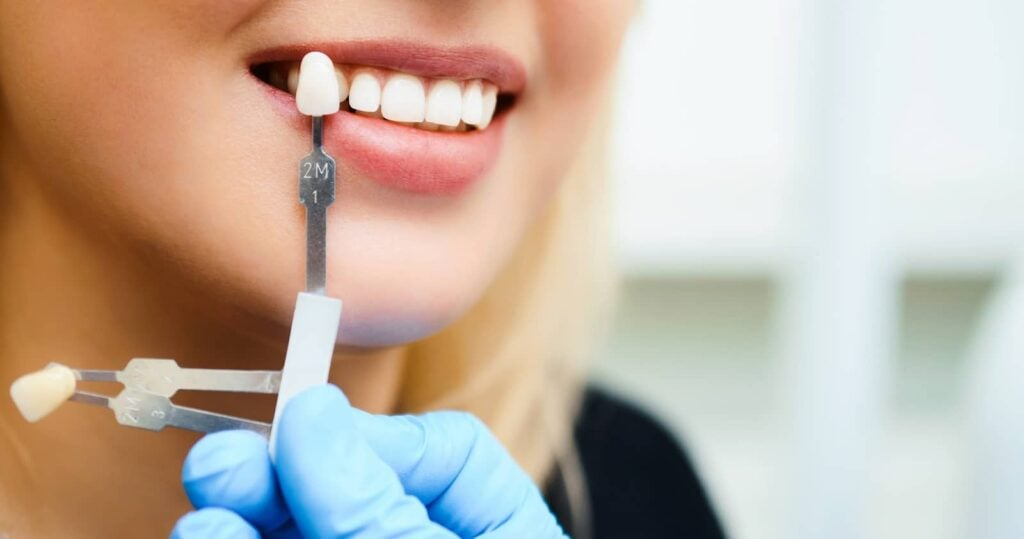 Las Vegas Tooth Whitening