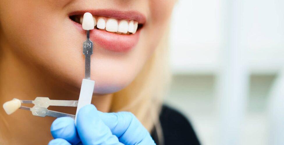 Professional Teeth Whitening In Las Vegas