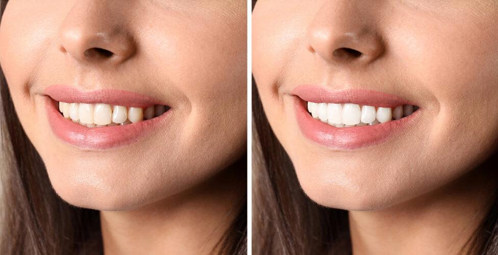 Whiter Teeth Las Vegas