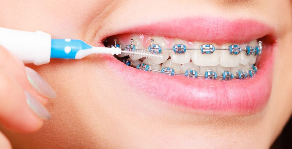 4 Tips For Brushing & Flossing With Braces