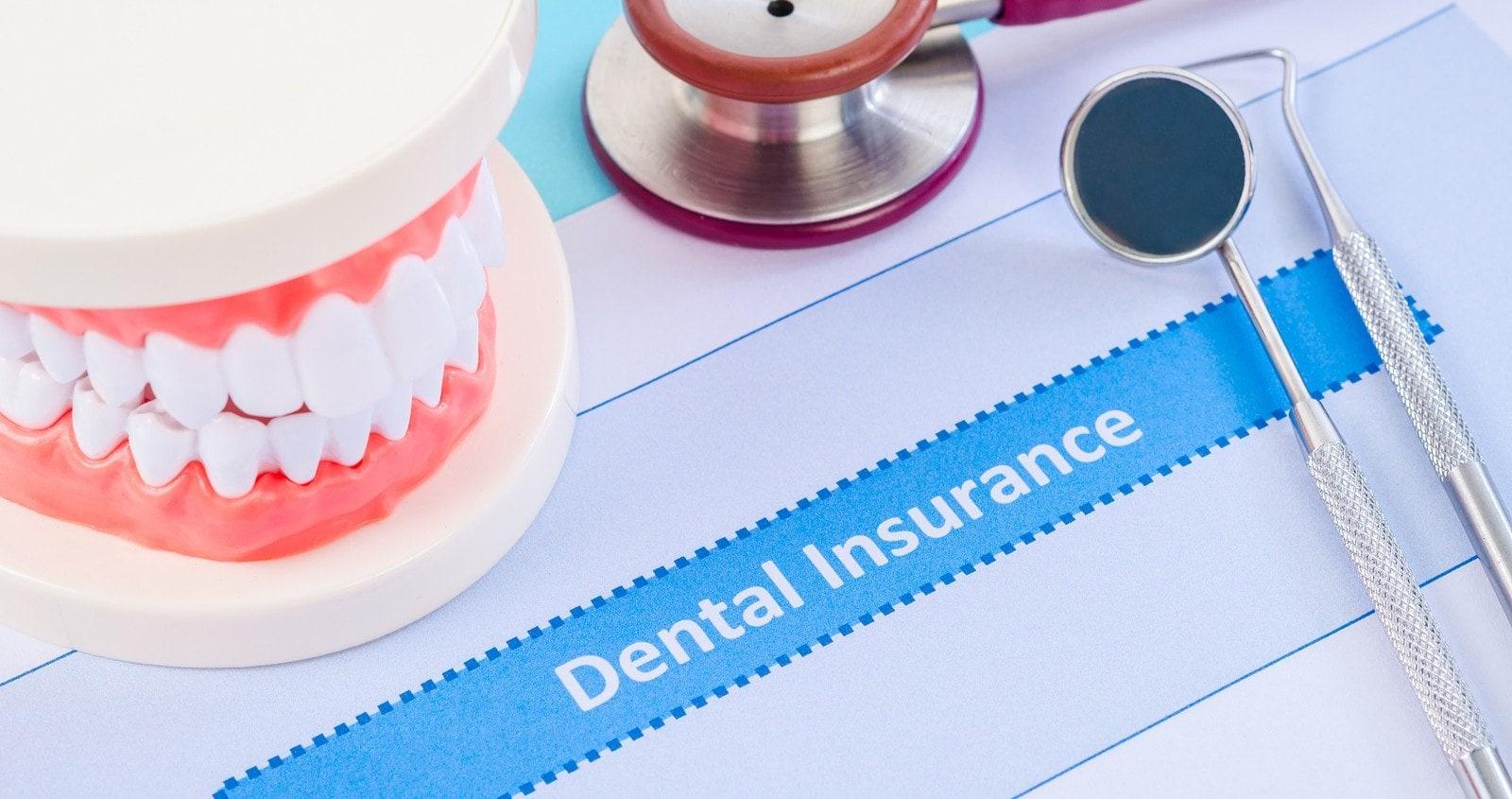 Dental Insurances We Accept