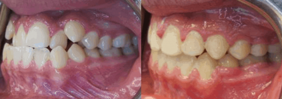 Before After Bite Correction