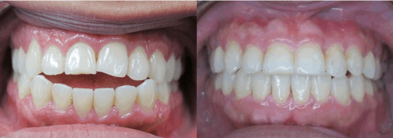 Before After Bite Correction LV