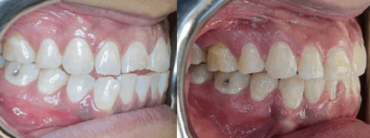 Before After Cosmetic Dentist