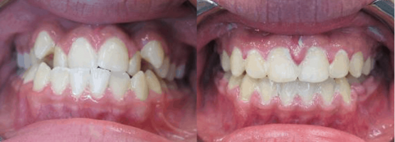 Before After Dental Treatment