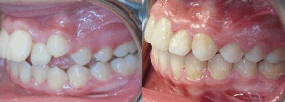 Before After Dental Work LV