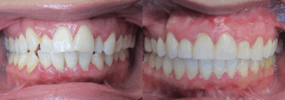 Before After Nevada Dentistry
