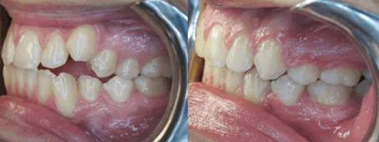 Before After Overbite Treatment
