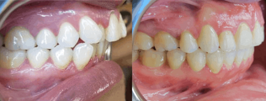 Before After Side Occlusion