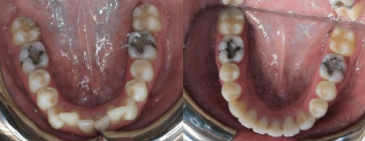 Before After Teeth Crowding