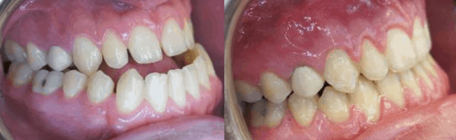 Before After Underbite Treatment