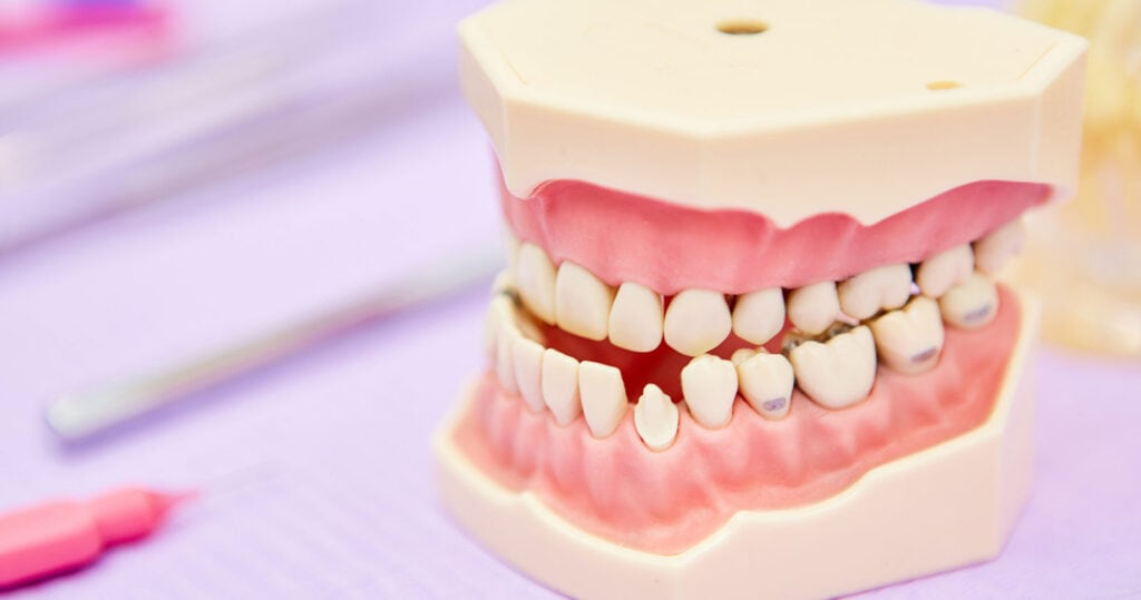 Underbite Dentist Las Vegas