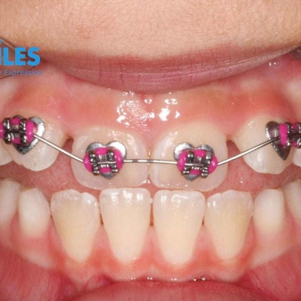 wiodsmiles braces after photo